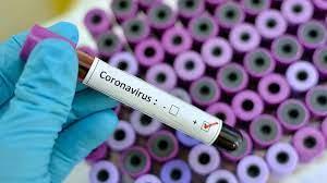 مشاهده نشدن ویروس کرونا دلتا در آذربایجان غربی